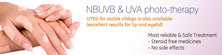 Nbuvb Amp Uva Photo Therapy Gh Derma Advance Laser
